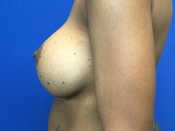 Breast Augmentation Gallery - Patient 47122206 - Image 8