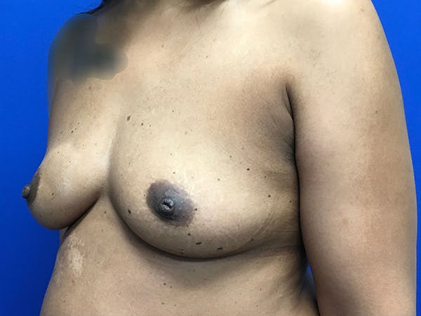 Breast Augmentation Gallery - Patient 47122206 - Image 9