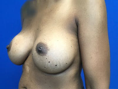 Breast Augmentation Gallery - Patient 47122206 - Image 10