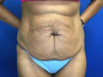 Tummy Tuck (Abdominoplasty) Gallery - Patient 47914639 - Image 1