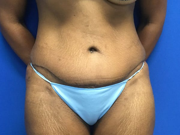 Tummy Tuck (Abdominoplasty) Gallery - Patient 47914639 - Image 2