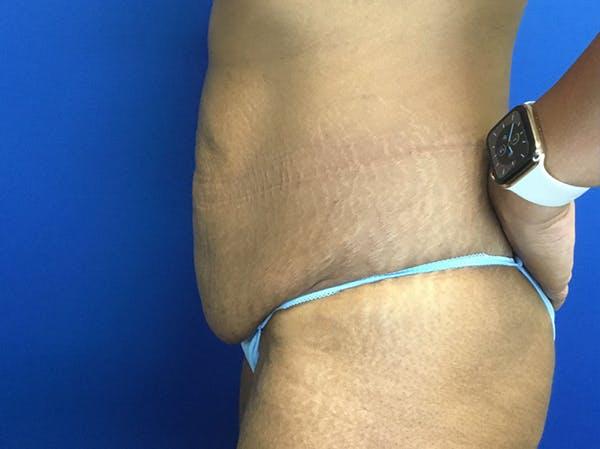 Tummy Tuck (Abdominoplasty) Gallery - Patient 47914639 - Image 3