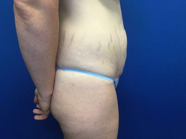 Tummy Tuck (Abdominoplasty) Gallery - Patient 48077065 - Image 3