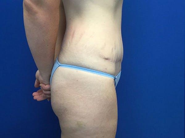 Tummy Tuck (Abdominoplasty) Gallery - Patient 48077065 - Image 4