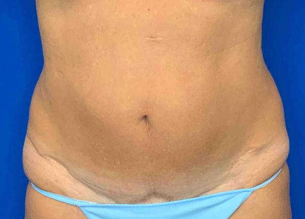 Liposuction Gallery - Patient 51852703 - Image 1