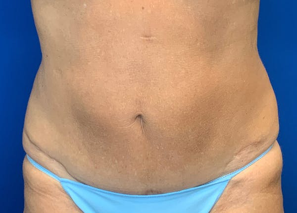 Liposuction Gallery - Patient 51852703 - Image 2