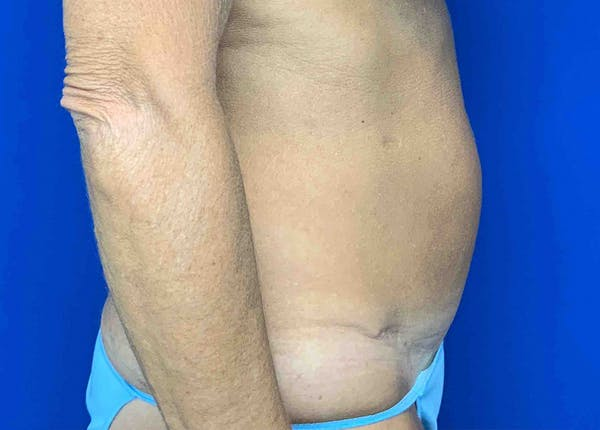 Liposuction Gallery - Patient 51852703 - Image 3