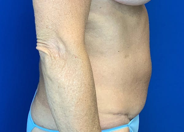 Liposuction Gallery - Patient 51852703 - Image 4