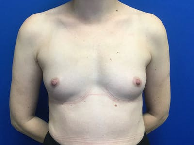 Breast Augmentation Gallery - Patient 55027763 - Image 1