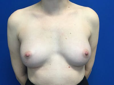 Breast Augmentation Gallery - Patient 55027763 - Image 2
