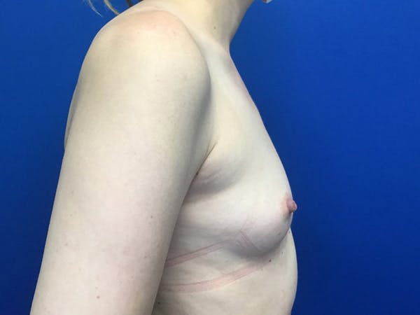 Breast Augmentation Gallery - Patient 55027763 - Image 3