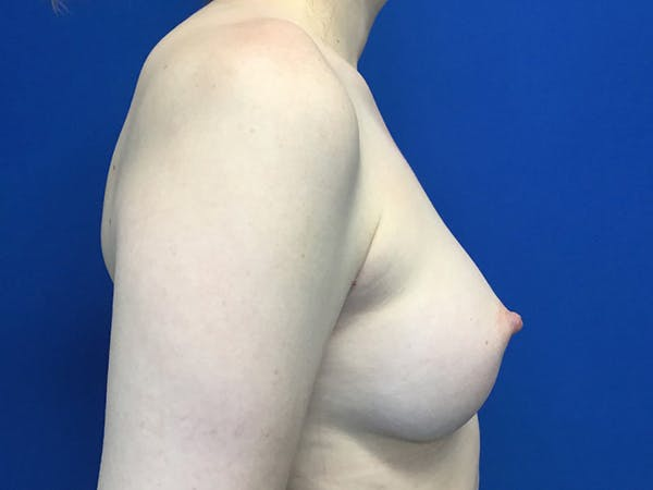 Breast Augmentation Gallery - Patient 55027763 - Image 4