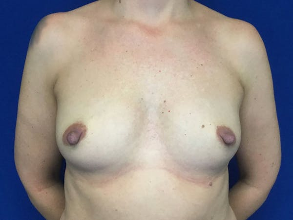 Breast Augmentation Gallery - Patient 55042614 - Image 1