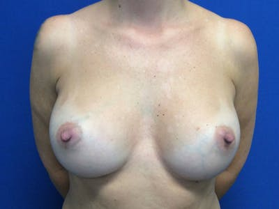 Breast Augmentation Gallery - Patient 55042614 - Image 2