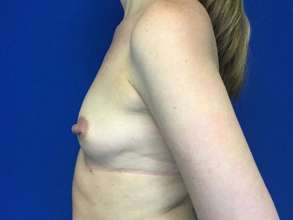 Breast Augmentation Gallery - Patient 55042614 - Image 3
