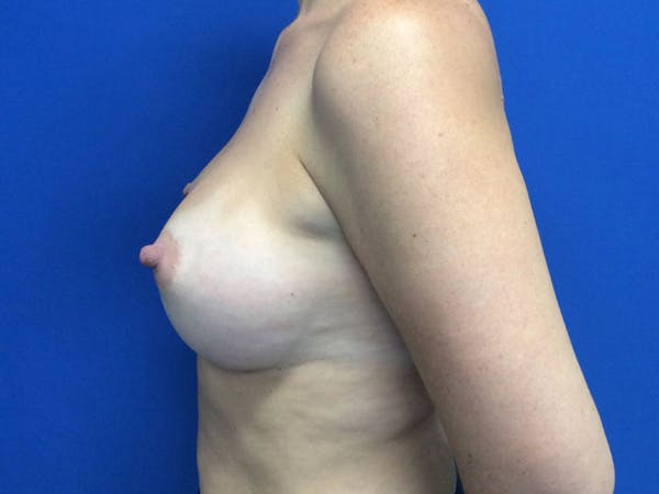 Breast Augmentation Gallery - Patient 55042614 - Image 4