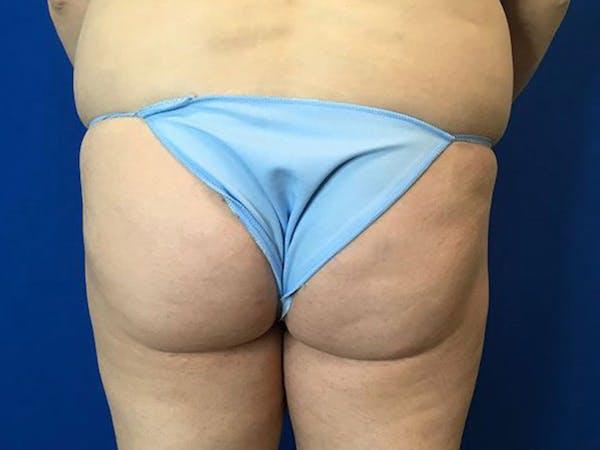 Brazilian Butt Lift Gallery - Patient 55042893 - Image 1