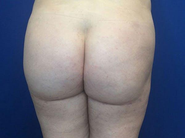 Brazilian Butt Lift Gallery - Patient 55042893 - Image 2