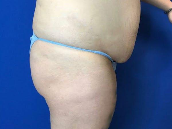 Brazilian Butt Lift Gallery - Patient 55042893 - Image 3