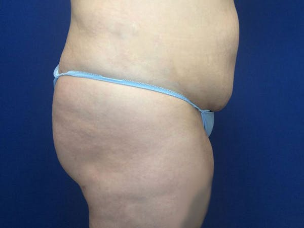 Brazilian Butt Lift Gallery - Patient 55042893 - Image 4