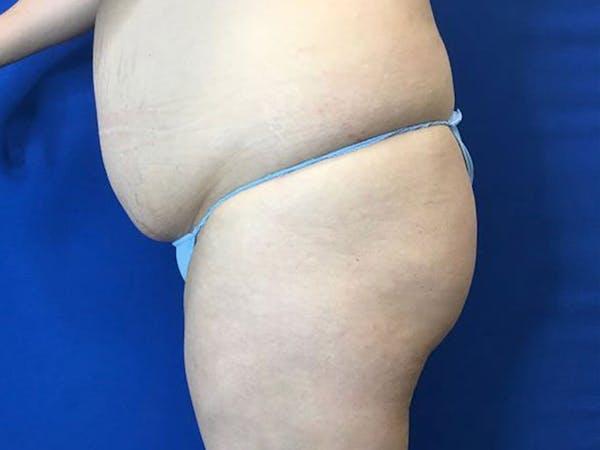 Brazilian Butt Lift Gallery - Patient 55042893 - Image 5