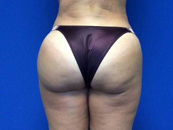 Brazilian Butt Lift Gallery - Patient 55042894 - Image 2