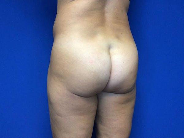 Brazilian Butt Lift Gallery - Patient 55042894 - Image 3