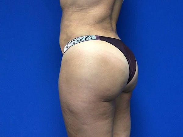 Brazilian Butt Lift Gallery - Patient 55042894 - Image 4