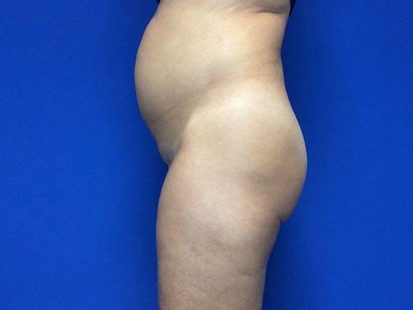 Brazilian Butt Lift Gallery - Patient 55042894 - Image 5