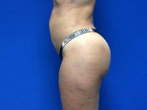 Brazilian Butt Lift Gallery - Patient 55042894 - Image 6