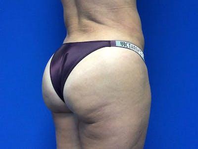 Brazilian Butt Lift Gallery - Patient 55042894 - Image 8