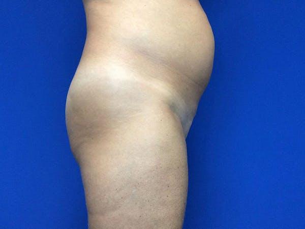Brazilian Butt Lift Gallery - Patient 55042894 - Image 9