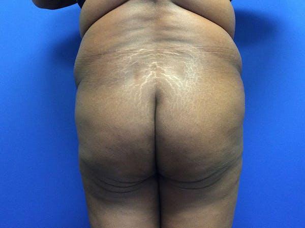 Brazilian Butt Lift Gallery - Patient 55042895 - Image 1
