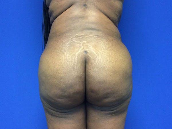 Brazilian Butt Lift Gallery - Patient 55042895 - Image 2