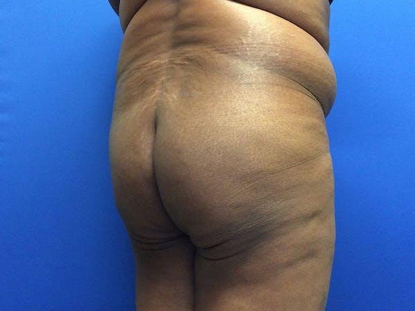 Brazilian Butt Lift Gallery - Patient 55042895 - Image 3