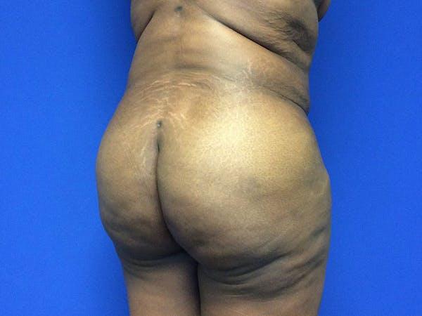 Brazilian Butt Lift Gallery - Patient 55042895 - Image 4