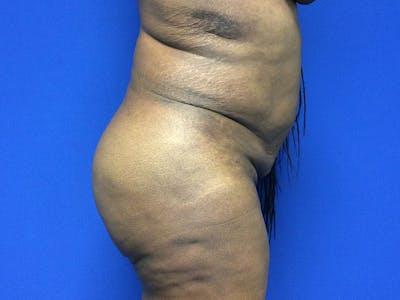 Brazilian Butt Lift Gallery - Patient 55042895 - Image 6