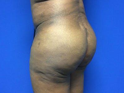 Brazilian Butt Lift Gallery - Patient 55042895 - Image 8