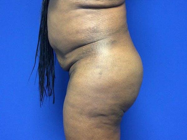 Brazilian Butt Lift Gallery - Patient 55042895 - Image 10