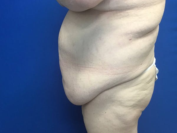 Tummy Tuck (Abdominoplasty) Gallery - Patient 58469936 - Image 3
