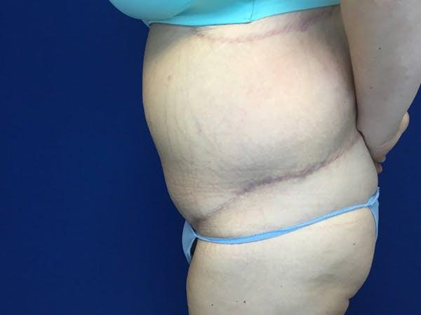 Tummy Tuck (Abdominoplasty) Gallery - Patient 58469936 - Image 4