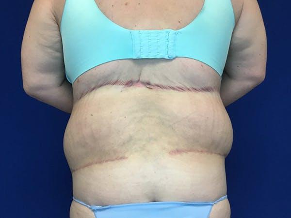 Tummy Tuck (Abdominoplasty) Gallery - Patient 58469936 - Image 6