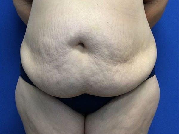 Tummy Tuck (Abdominoplasty) Gallery - Patient 60071314 - Image 1