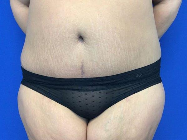 Tummy Tuck (Abdominoplasty) Gallery - Patient 60071314 - Image 2