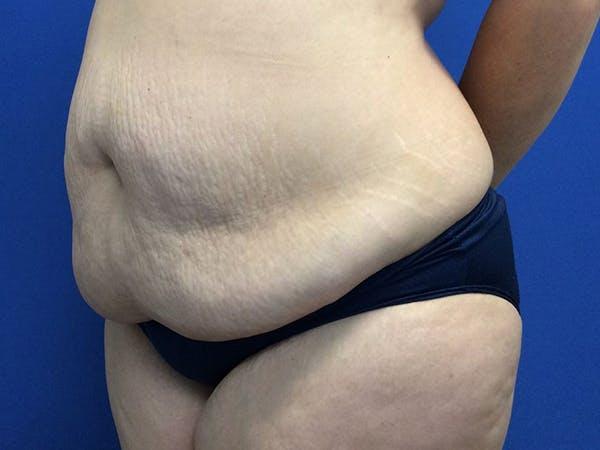 Tummy Tuck (Abdominoplasty) Gallery - Patient 60071314 - Image 3