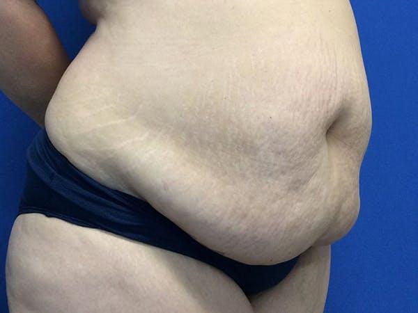 Tummy Tuck (Abdominoplasty) Gallery - Patient 60071314 - Image 7