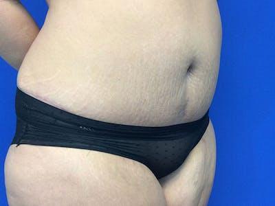 Tummy Tuck (Abdominoplasty) Gallery - Patient 60071314 - Image 8