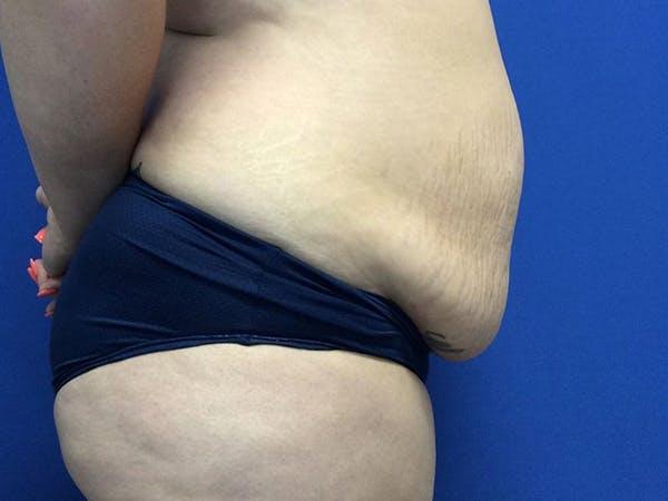Tummy Tuck (Abdominoplasty) Gallery - Patient 60071314 - Image 9