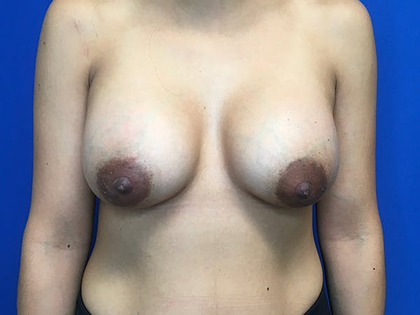 Breast Augmentation Gallery - Patient 62096004 - Image 2