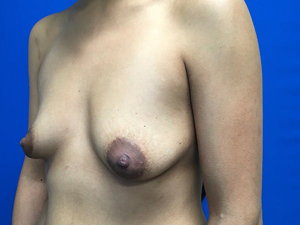 Breast Augmentation Gallery - Patient 62096004 - Image 3